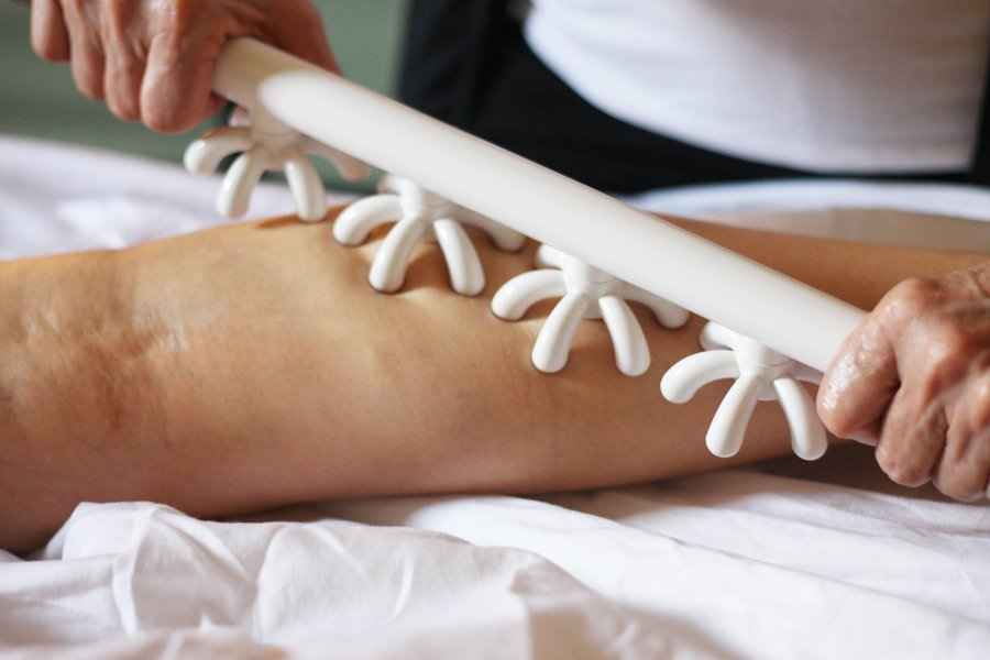 Myofascial/Cellulite Treatment with the Fascia Blaster